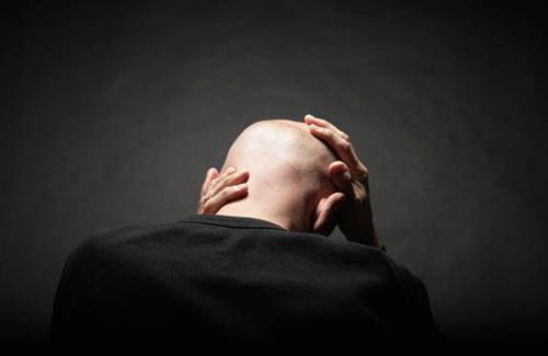 bald-man-348382-5866-1449048841